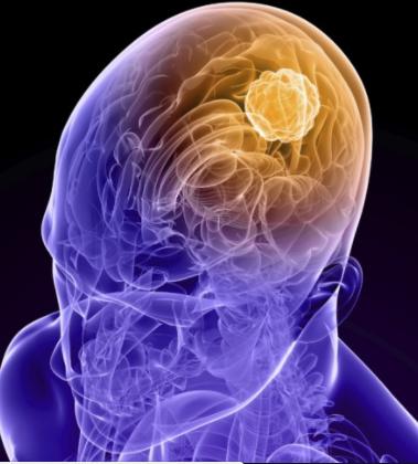 Gejala Penyakit Kanker Otak Yang Berbahaya   Propolis ...