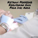 Ketahui Penyebab Kerusakan Gigi Pada Diri Anda