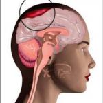 Gejala Sakit Kepala Yang Berbahaya