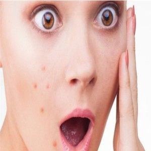 propolis untuk wajah